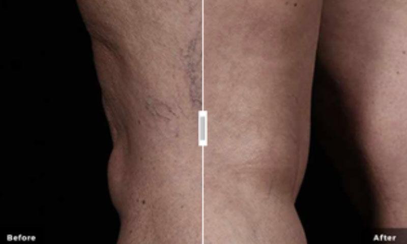 laser vascular treatment saskatoon