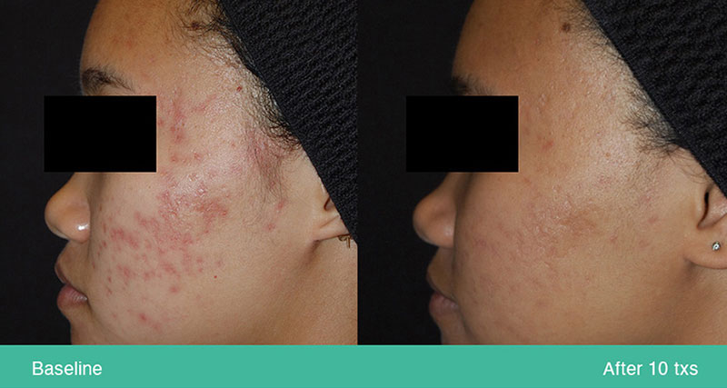 acne laser dark skin