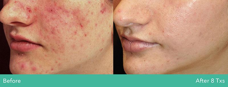 acne scar removal saskatoon