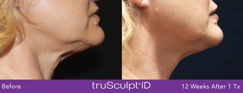 chin contouring