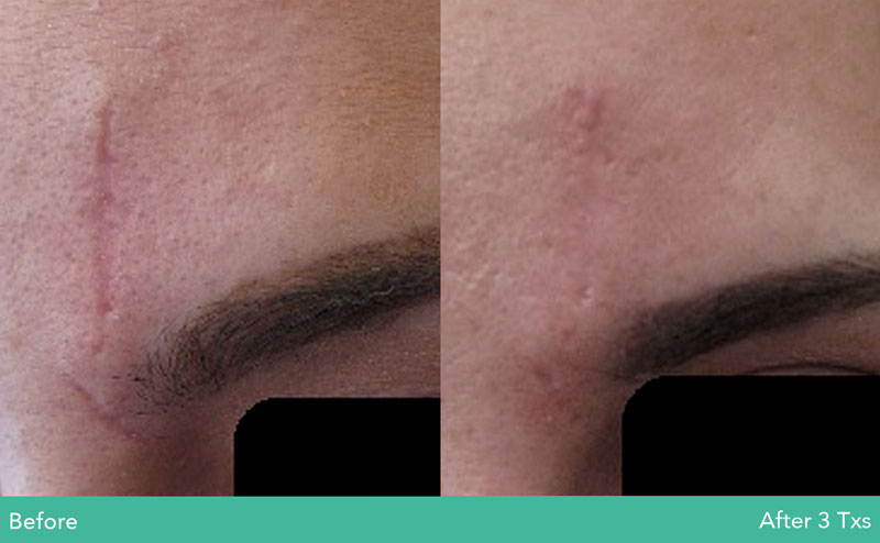 removing scars with laser