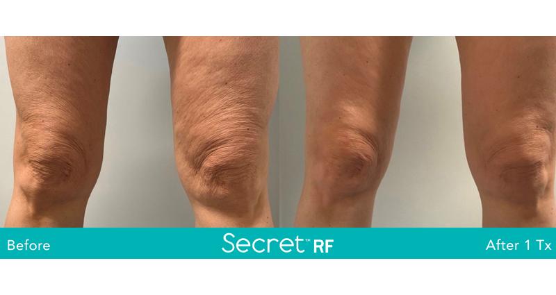 laser skin reduction