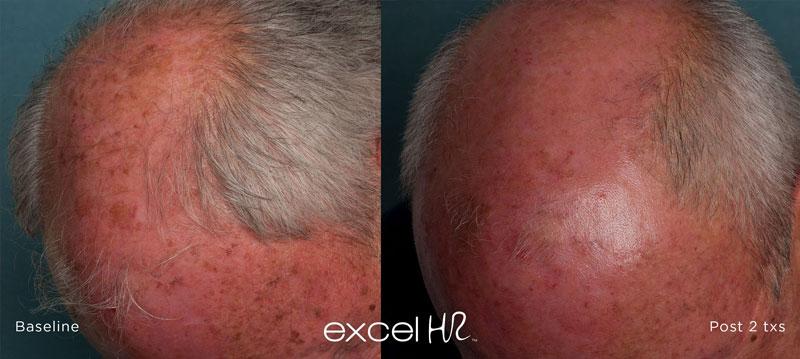 laser sunspot removal
