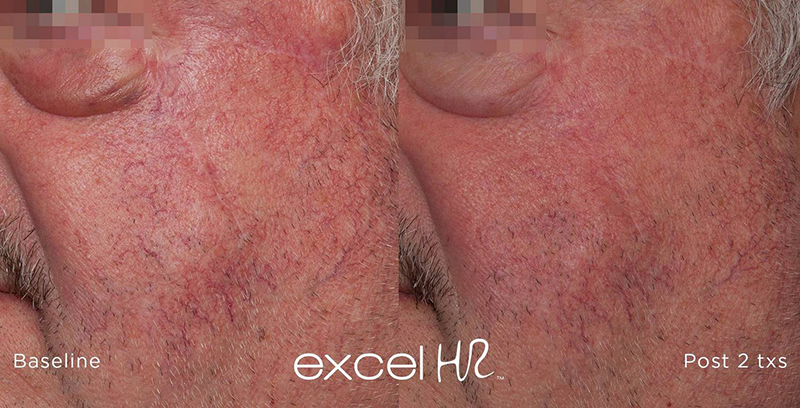 redness in face treatment